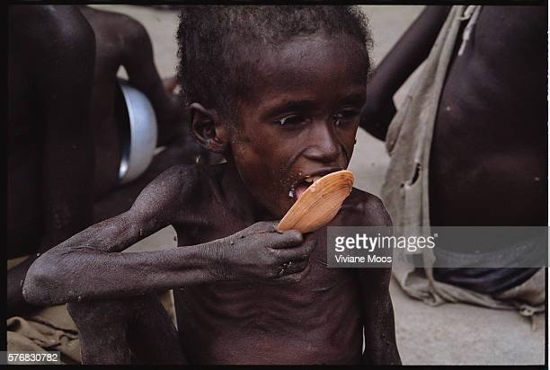 An emaciated boy eats his ration of porridge at a feeding center in Kongor Sudan Civil war and widespread famine have ravaged Sudan for decades...