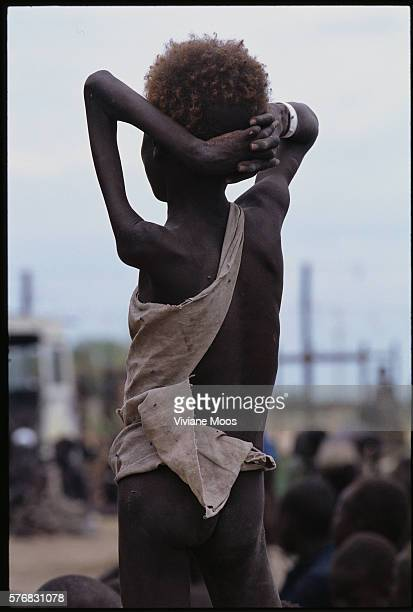 An emaciated child awaits a meal at a feeding center in Kongor Sudan Civil war and widespread famine have ravaged Sudan for decades resulting in more...