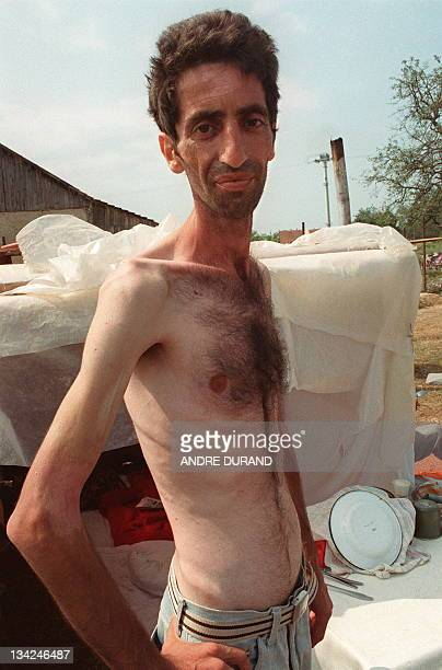 An emaciated prisoner of the Serbs shown in a photo dated 13 August 1992 at the Ternopolje camp in the northwest of Bosnia