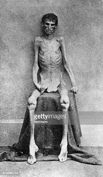 An emaciated Union soldier is shown upon his release from the Confederate prison Camp Sumter located in Andersonville Georgia