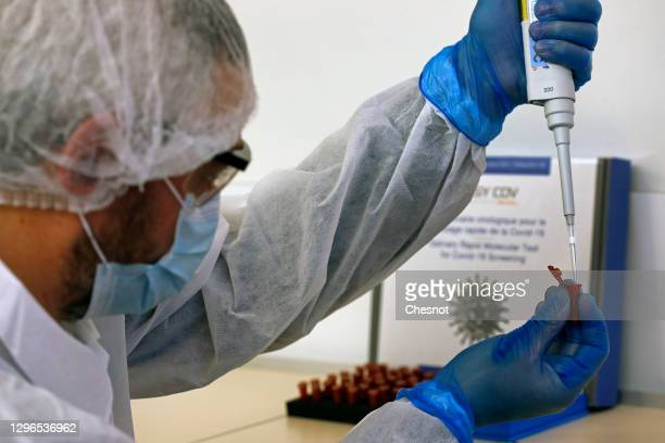 An employee from the biotechnology company SkillCell takes a saliva sample to detect the disease Covid-19 with a rapid-acting saliva-based test...