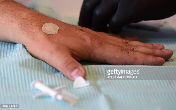 An employee of internet security company Kaspersky Lab has a microchip implanted in the area between his thumb and the index finger during a...