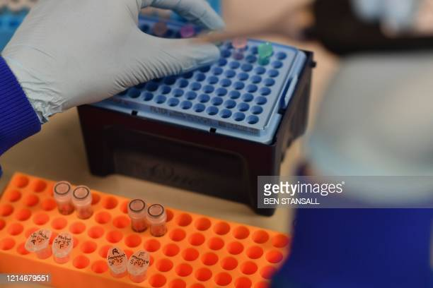 An employee works at the Stabilitech laboratory in Burgess Hill south east England on May 15 2020 where scientists are trying to develop an oral...
