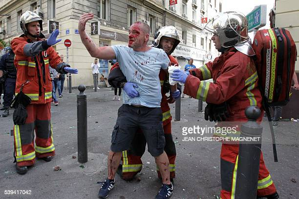 TOPSHOT An English supporter injured after a street brawl is helped by a rescue squad ahead of the Euro 2016 football match England vs Russia...
