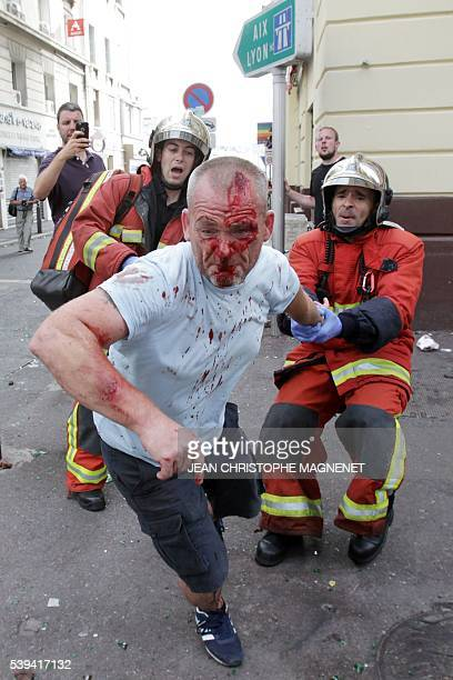 An English supporter injured after a street brawl is helped by a rescue squad ahead of the Euro 2016 football match England vs Russia southern France...