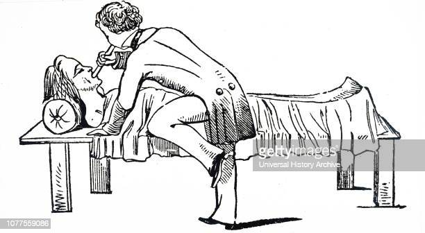 An engraving depicting early artificial respiration using a tube to blow air into the lungs of a victim of asphyxia applied in cases of drowning...