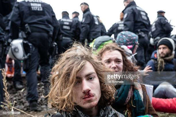 An environmental activists of 'Ende Gelaende' awaits treatment for injuries suffered from police arrests during the blockade of the rail track of the...