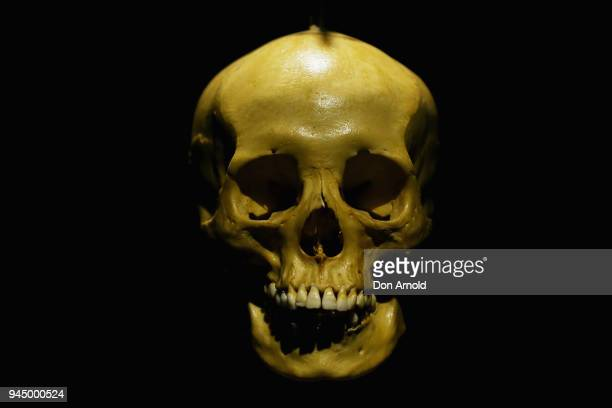 An exhibit 'Human Skeleton' is seen displayed during the Real Bodies The Exhibition Media Preview on April 12 2018 in Sydney Australia