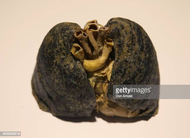 An exhibit named 'Smokers Lungs' is viewed during the Real Bodies The Exhibition Media Preview on April 12 2018 in Sydney Australia