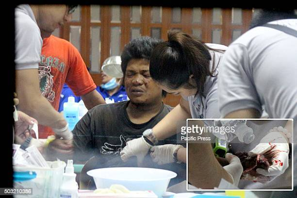 An illegal firecrackers victim during the new year 2016 is rushed to East Avenue Hospital in Quezon City to be given proper treatment on his hands...
