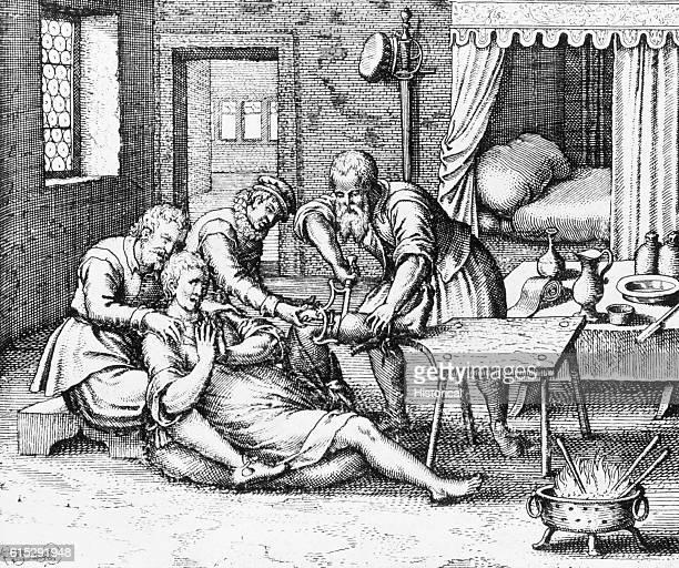 An illustration from Fabricus von Hilden's 1618 De gangraena et sphacelo depicts the amputation of a man's gangrenous leg
