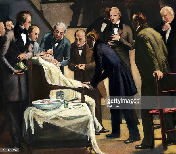 An illustration showing the first administration of ether during surgery in 1846 The scene at Massachusetts General Hospital shows William TG Moore...