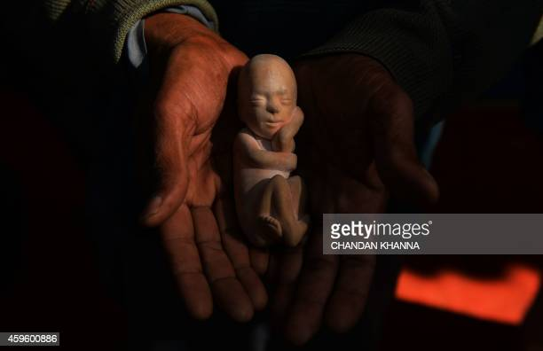 An Indian activist holds a model of a foetus during a protest against abortion in New Delhi on November 26 2014 The Women's Commission organisation...