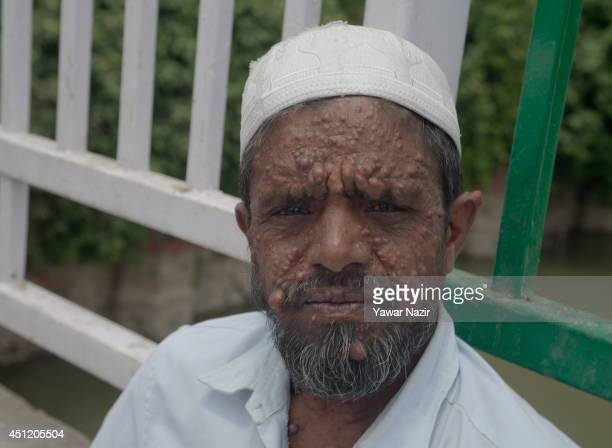 An Indian beggar Sahajul Sheikh with the rare condition Human Papilloma Virus begs on a roadside on June 25 2014 in Srinagar the summer capital of...