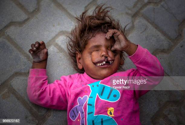 An Indian child beggar Arjun 3 years old with the disfigured face begs with his father on a roadside on May 10 2018 in Srinagar the summer capital if...