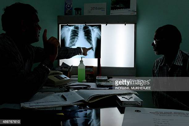An Indian doctor briefs a patient who survived the 1984 Bhopal gas disaster and who currently suffers from respiratory ailments on the condition of...