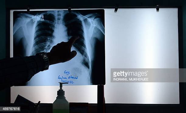 An Indian doctor gestures to a chest xray as he briefs a patient who survived the 1984 Bhopal gas disaster and who currently suffers from respiratory...
