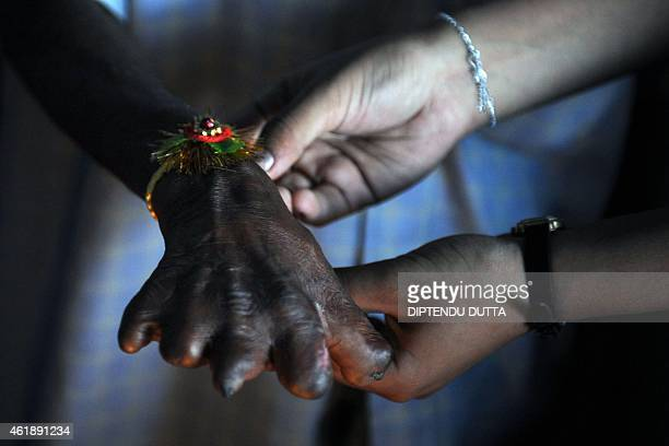 An Indian girl ties a 'rakhi' onto the wrist of a man suffering from leprosy at the Chetna Leprosy Centre on the eve of the Hindu festival of Raksha...