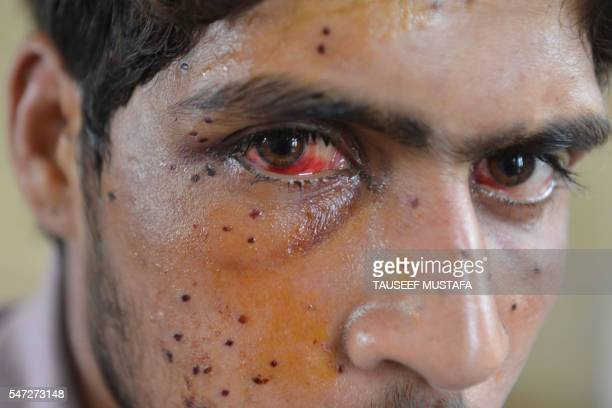 TOPSHOT An Indian Kashmiri youth with an eye injury sits in a hospital after being hit by pellets fired by Indian security forces during a protest in...