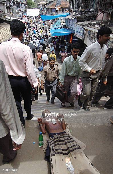 An Indian Muslim man with hand deformaties and burn scarring on his chest and stomach lies on his back to expose his problems to passersby to extract...
