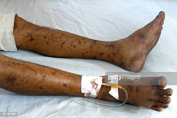 An Indian patient with the symptoms of bacterial meningitis lies on his bed at a special ward of the Hindu Rao Hospital in New Delhi 10 May 2005 An...