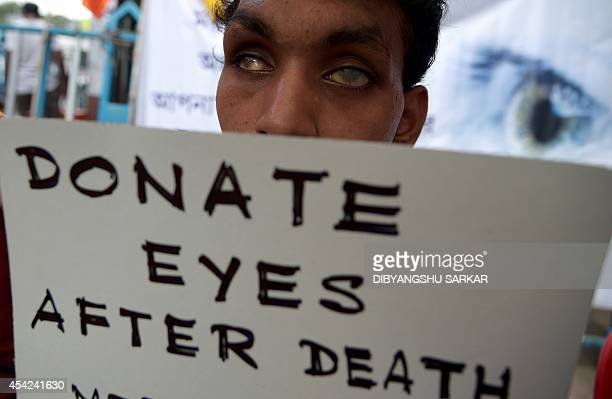 An Indian visually challenged boy holds a poster during a campaign to create awareness about eye donation in Kolkata on August 27 2014 According to a...
