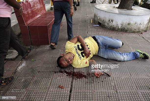 An Indigeneous People's Front of Twipra supporter lies injured on a street in Agartala on August 23 after violence flared in the northeastern Indian...