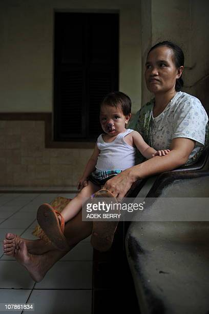 An Indonesian mother holds her third child Raya who suffers from Capillary hemangioma also known as an infantile hemangioma or strawberry hemangioma...