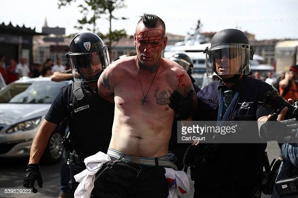 An injured Austria fan is arrested after clashing with police ahead of the game against Russia later today on June 11 2016 in Marseille France...