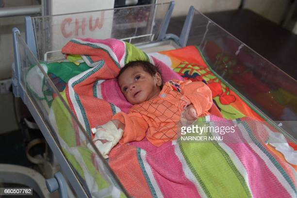 An injured baby girl rests at a government hospital in Amritsar on March 30 2017 An Indian baby thought to be five days old was rescued on March 27...