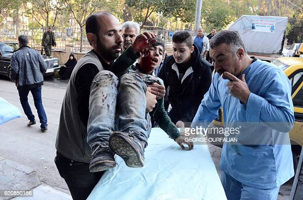 TOPSHOT An injured child is put on a stretcher upon his arrival at alRazi Hospital in the western governmentheld alMohafaza neighbourhood on November...