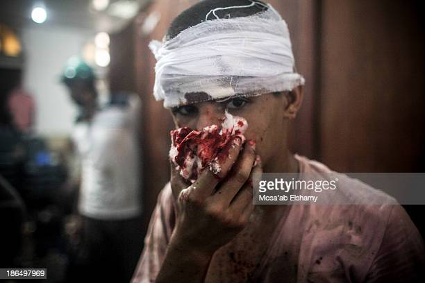 CONTENT] An injured child is seen at the Rabaa Adaweya makeshift hospital during the violent dispersal of the camp by security forces which left over...