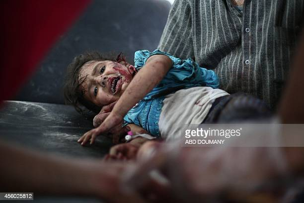 An injured child lies on a bed at a makeshift hospital in the besieged rebel bastion of Douma northeast of the Syrian capital Damascus on September...