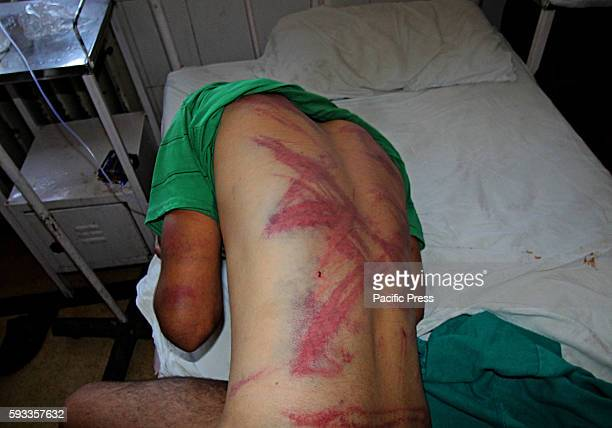 An injured civilian from Khrew in Pulwama district admitted in hospital showing the torture marks on his body Residents said that Indian army and...