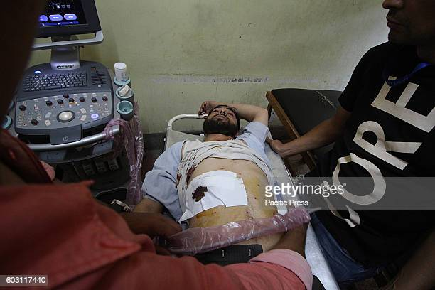 An injured civilian is being treated at a hospital in Srinagar the summer capital of Indian controlled Kashmir Hundreds of civilians sustained...