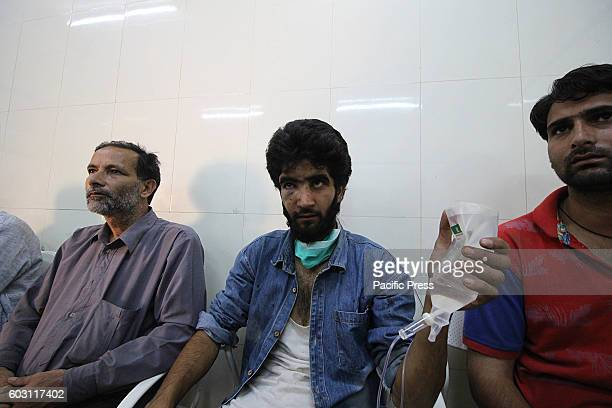An injured civilian rests in a hospital in Srinagar the summer capital of Indian controlled Kashmir Hundreds of civilians sustained injuries when...