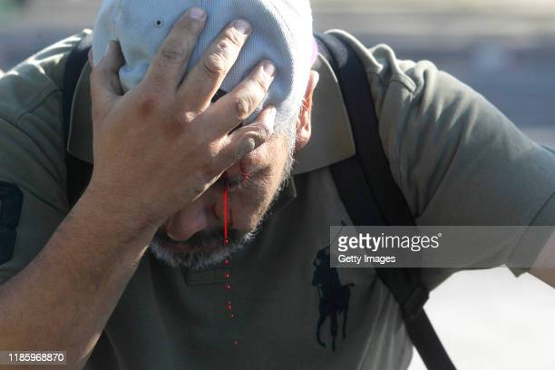 An injured demonstrator holds his heads as bleeding from an eye during protests against the government of President Sebastian Piñera who turns 70 on...