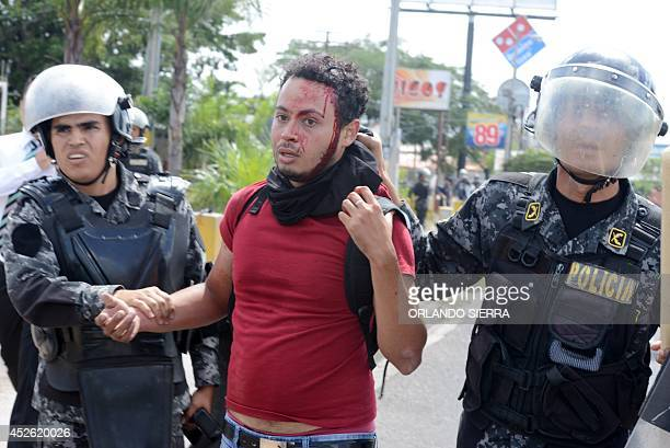 An injured demonstrator is arrested as Universidad Nacional Autonoma de Honduras students clash with riot police during a protest demanding...