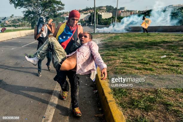 TOPSHOT An injured demonstrator is carried away by a fellow activist during clashes with riot police in Caracas on May 31 2017 Venezuelan authorities...
