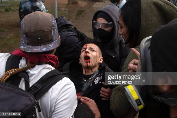 TOPSHOT An injured demonstrator is helped during clashes with security forces following the socalled 'Mourning March' in Santiago on November 01 to...
