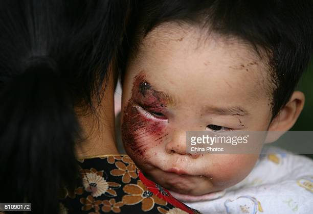 An injured earthquake victim receives medical aid at the Jiuzhou Stadium May 14 2008 in Mianyang of Sichuan province China A major earthquake...