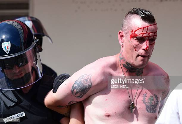An injured England fan is detained by police personnel as England fans gather in the city of Marseille southern France on June 11 ahead of the Euro...