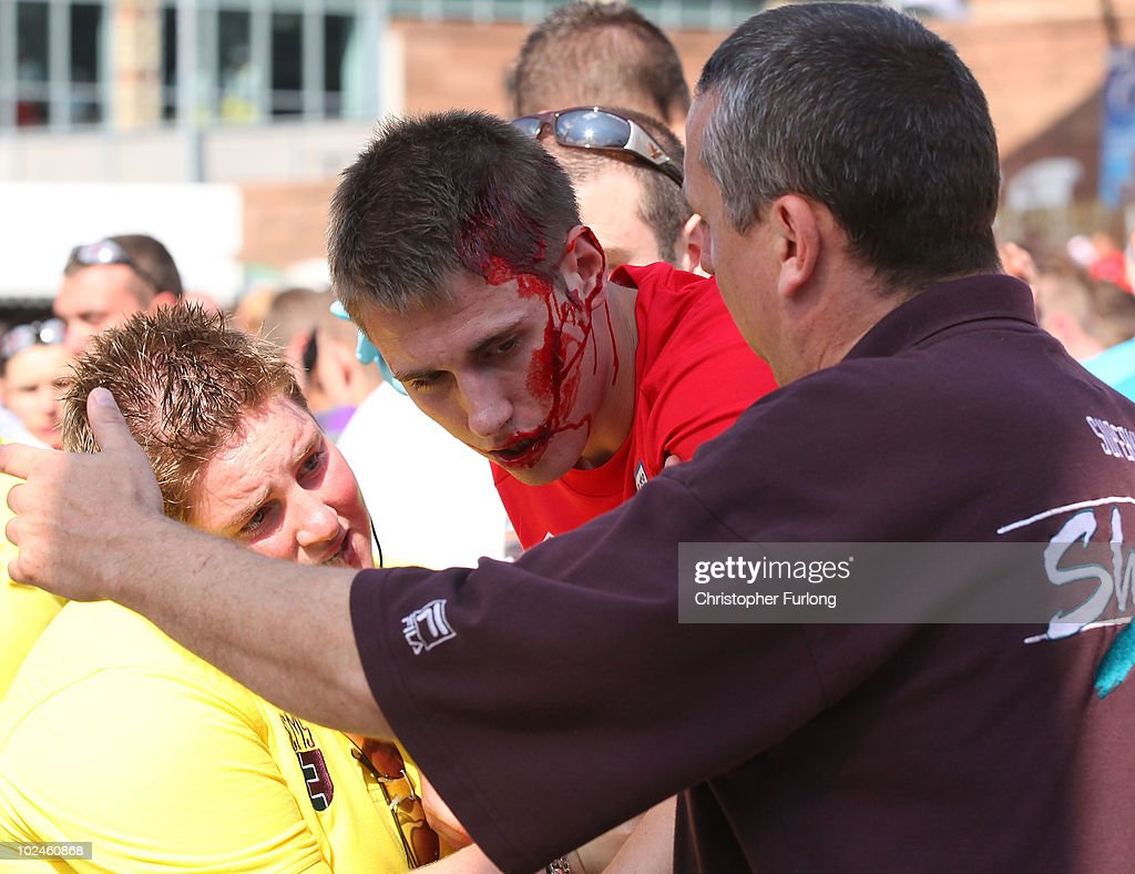 An injured fan is escoreted by security as England - shown on a giant screen in the Manchester fan zone - lose 4-1 to Germany on June 27, 2010 in Manchester, England. England were knocked out of the FIFA 2010 World Cup competition by 4 goals to 1 in South Africa