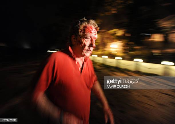 An injured foreigner rushes from the burning facade of The Marriott Hotel in Islamabad on September 20 following a powerful bomb blast At least 27...