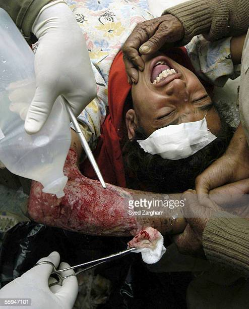 An injured girl crys with from pain at Iran's mobile hospital during treatment in Ghari Habibullah on October 18 2005 in Mansehra Pakistan An...