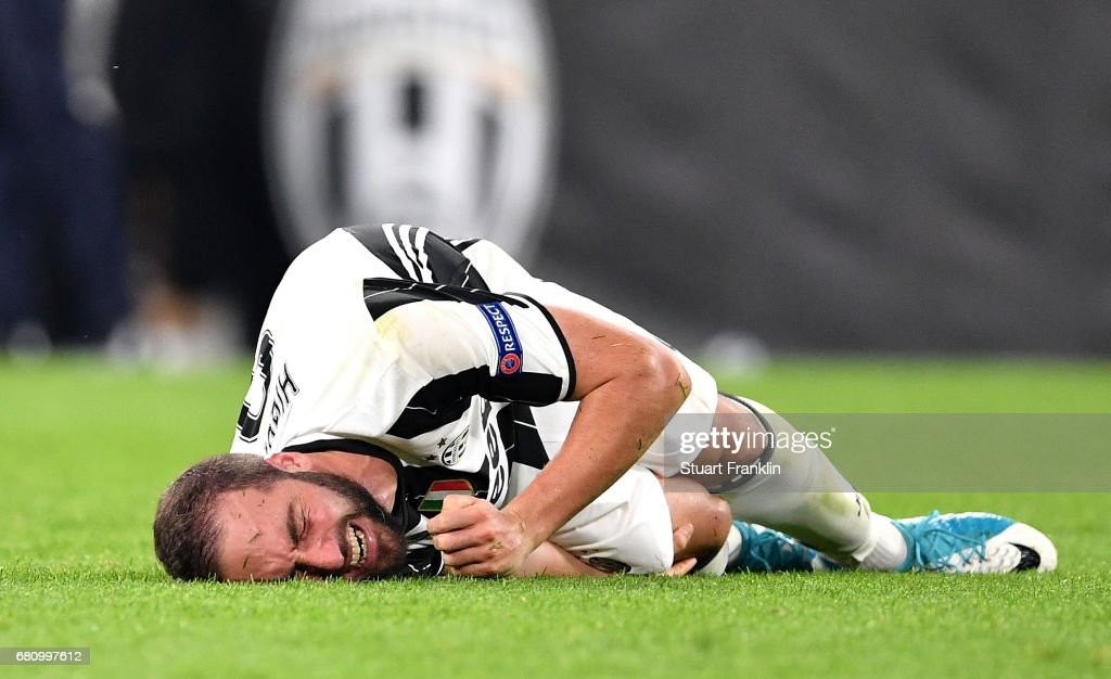 An injured Gonzalo Higuain of Juventus reacts during the UEFA Champions League Semi Final second leg match between Juventus and AS Monaco at Juventus Stadium on May 9, 2017 in Turin, Italy.