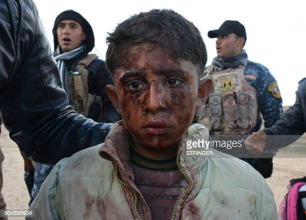 An injured Iraqi boy, who fled hunger and jihadist rule in the Iraqi city of Hawijah with his family, recieves assistance from Iraqi security forces...