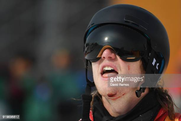 An injured James Woods of Great Britain looks on after he crashes during the Freestyle Skiing Men's Ski Slopestyle Final on day nine of the...