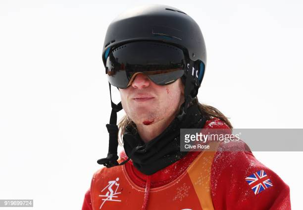 An injured James Woods of Great Britain reacts after he crashes during the Freestyle Skiing Men's Ski Slopestyle Final on day nine of the PyeongChang...