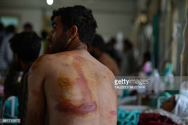 An injured Kashmiri patient who was allegedly beaten up by Indan army soldiers speaks with relatives while sitting on a hospital bed in Srinagar on...